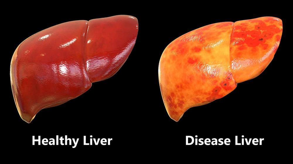 Metode Pengobatan Penyakit Liver Dengan Tanaman Herbal